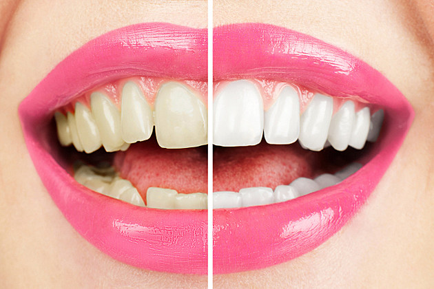 teeth whitening missoula